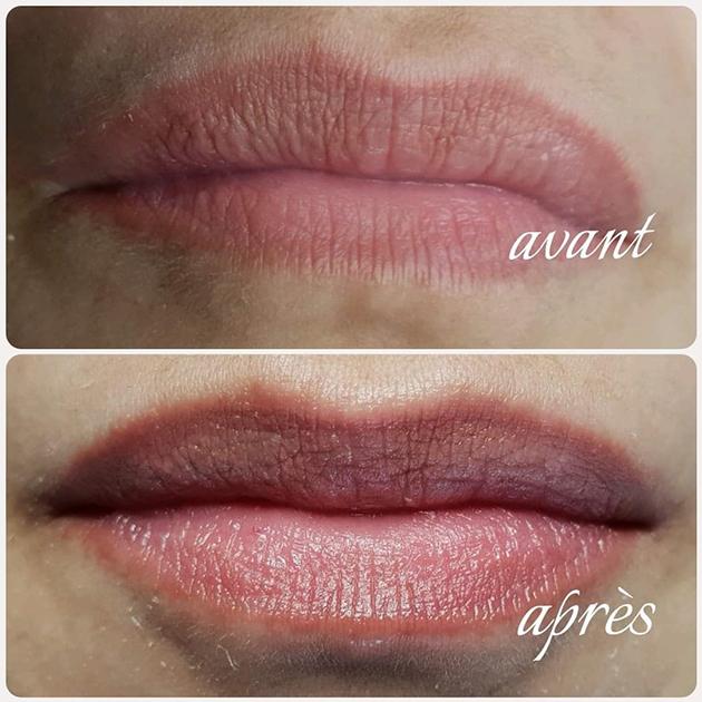 Hyaluron pen sur les lèvres